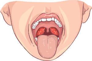 Mund, Zunge, Gauben, Zähne, Mandeln, Tonsillen, Gesicht, Kopf, geschwollen, mandelentzündung