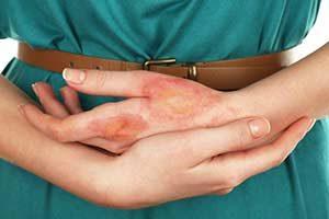 Infektionen mit Manuka Honig behandeln