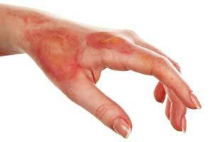 Behandlung mit manuka Honig Verbrennung