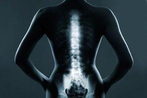 Hausmittel gegen Rückenschmerzen