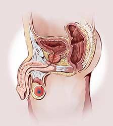Peniswurzel schmerzen Penisschmerzen bei