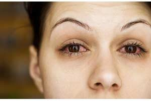 Augenschmerzen Zincum sulfuricum schüssler-Salz nr. 36