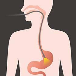 Behandlung Magenspiegelung Symptome Magenkrämpfe