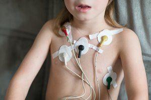 Behandlung Langzeit EKG
