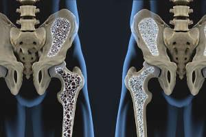 Osteoporose, Knochenschwund, Knochen, Skelett, Gelenke, Hüfte, Becken