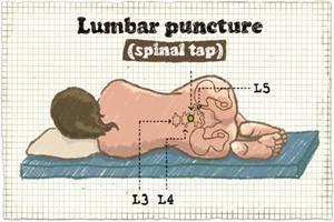 Behandlung Lumbalpunktion