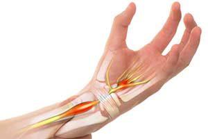Behandlung handgelenk, karpatunnel, karpatunnelsyndrom, nerven, sehnen, hände, Handchirurgie Karpaltunnelsyndrom, KTS