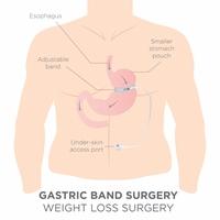 Behandlung Magenband