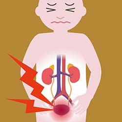Unterleibsschmerzen Ziehen