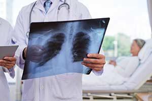 Behandlung Radiologie Symptome Lungenschmerzen Klebsiella pneumoniae