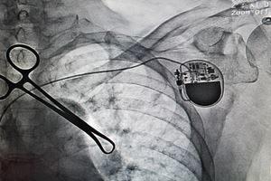Behandlung Herzkatheteruntersuchung Blasenkatheter