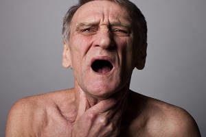 Pfeiffer-Drüsenfieber, Pfeiffersches Drüsenfieber, Morbus Pfeiffer, Infektiöse Mononukleose, Mononucleosis infectiosa, Monozytenangina, Kusskrankheit, Studentenkrankheit, Studentenfieber, halsschmerzen, schmerzen, heiserkeit, kehlkopf, mandeln, tonsillen, lymphdrüsen