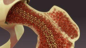 Behandlung Knochenmarkspende