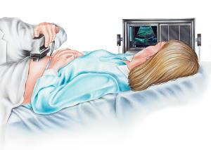 Behandlung Nackentransparenzmessung