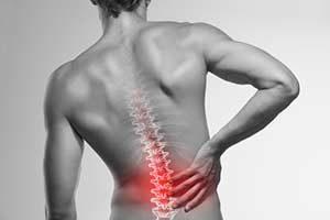 Flankenschmerzen Symtom Anzeichen Ursachen Diagnose