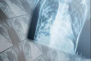 Radiologe