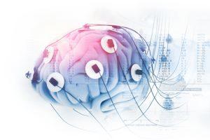 Behandlung Neurofeedback