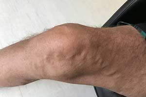 Schmerzen Bein Knie
