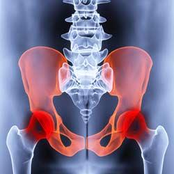 Leiste Schmerzen Symptome Leistenschmerzen