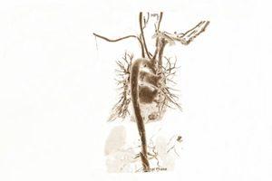 Behandlung Koronarangiographie Symptome Kreislaufprobleme
