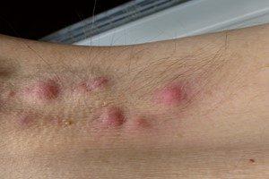 Krankheiten Akne inversa