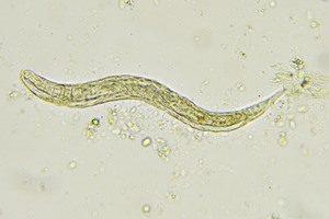 Krankheiten Madenwürmer