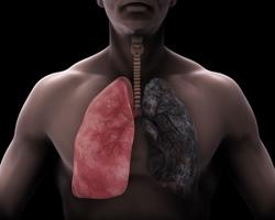 Krankheiten Raucherlunge