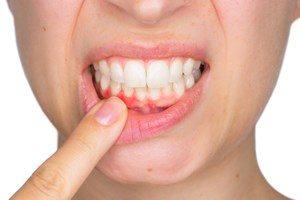 Krankheiten Zahnfleischentzündung Elmex Gelee