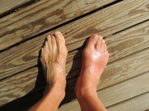 Fußfehlstellung füße barfuß holzboden plattfuß