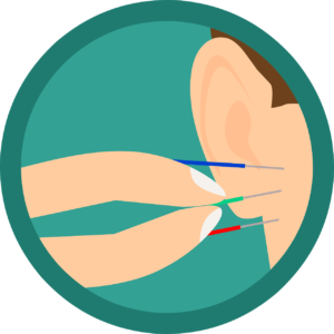 Ohr Akupunktur Ohrakupunktur