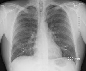 diagnose , xray , brust , lunge , rippen , körper , menschliche , organe , knochen , medizin , nippelringe brustbein brust bronchien lunge