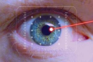 lasern , auge , iris , laser , korrektur , sehkorrektur , pupille , augenoperation, Laserbehandlung am Auge