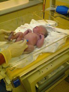 geburt , ersten atemzug , baby , kreißsaal , nabel, neugeborenes, krankenhaus, nabelschnur