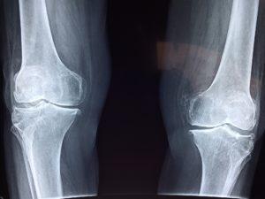 Röntgenaufnahme, Knie, Kniescheibe, Gelenke, Oberschenkel, Unterschenkel, Waden Knieschmerzen, Arthrose, Arthritis, skelett , knochen, bänder, sehnen