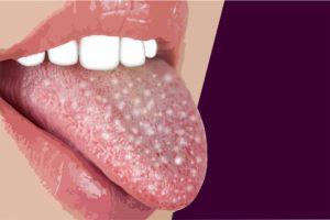 Zunge Anatomie Funktion Beschwerden Krankde