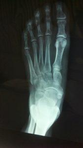 Fuß, Füße, Röntgenaufnahme, Knöchel, Sprunggelenk