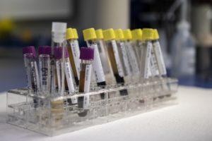 blut , analyse , labor , test , medizinische , prüfungen , gesundheit , diagnostiker , diagnose , biochemie , beispiele , mikrobiologie , rohr BSG Blutsenkungsgeschwindigkeit, Gesamtprotein