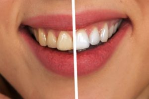 zähne , zahnpflege , weiß , weisse zähne , hygiene , zahnhygiene , zahn , zahnmedizin , körperpflege , zahnarzt , sauber , gesundheit , pflege , putzen , reinigen , mund , zähne putzen , sauberkeit , attraktiv , lächeln , zahncreme . Weisse Zähne für gesundes Selbstvertrauen
