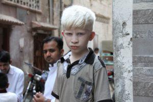 albino, weiß, asiatische, albinismus, haut,