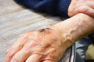 hand , verletzung , hautabschürfung , abschürfung , blutig , unfall , verwundung , wunde , schorf , riss , haut , heilung , verheilen , narbe , adern, gerinnung, thrombozyten, blutgerinnung, thrombin, schorf, wunde, verlertzung