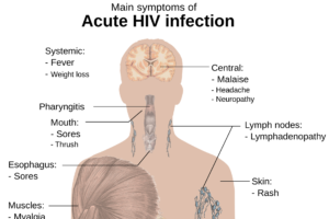 HIV-Antikörper HIV Viruslast hiv , aids , png 1-2 , untersuchung des menschlichen körpers , überblick , rumpf , symptome , komplikationen , infektion , gehirn , leber , muskeln , mund , haut , magen , speiseröhre , übelkeit , magenprobleme , lymphknoten , patient , krankheit , pflege , vorführung , bildschirm , behandeln , behandlung , studie , medizin , atem , herz , darm , tumoren , lunge , detailliertes bild , wissenschaft , biologie , lehre , membran , tabelle p24 Protein