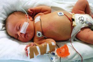 RSV, HRSV, neugeborene , krank , baby , medizinische , gesundheit , krankenhaus , mädchen , krankheit , patienten , kleinkind
