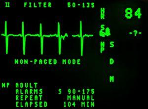 elektrokardiogramm , schlagen , kardiologie , anzeige , ekg , notfall , frequenz , grafik , herz , krankenhaus , linie , medizinische , medizin , monitor , puls , preise , rhythmus , bildschirm , signal EKG Herzerkrankung