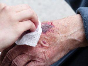 hand , verletzung , wunde , blut , riss , desinfektion , blutig , verwundung , unfall , schürfung , ablederung , abledern , sturz , verletzt , schmerzhaft , handrücken