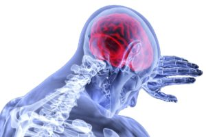 gehirn , entzündung , schlaganfall , medizinische , gesundheitswesen , neurologie , schmerz , psychologie , menschliche , anatomie, Gehirnerschütterung. Schädel-Hirn-TraumaSHTSchädel-Hirn-Verletzung, Commotio cerebri