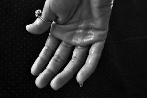 hand , hyperhidrose , schwitzen , schweißdrüsen , ausbruch , reinigung , syndrom , comporea hochtemperatur , kein fieber , geruchlose flüssigkeit , programmierung fehler , thermostat , hypothalamus , schweiß , klitschnass , nass , grondande , schweiß gebadet , suppe , taufeucht