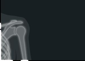 röntgen , röntgenbild , strahlung , schulter , schlüsselbein , medizin
