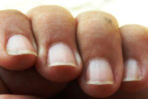 finger , nagel , hand , kolumbien, nagelbettentzündung