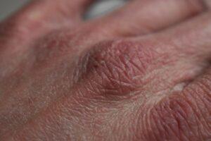 rockene haut , hände , gesundheit , lotion , hand , pflege , hautpflege , knöchel ,