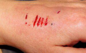 Tollwut, hand , verletzung , biss , hundebiss , schmerzhaft , blut , verwundung , risse , haut , handrücken , verletzt , angst , tiefe kratzer ,